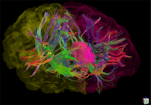 In an illustration of the brain of a person with Parkinson's disease, white matter fibers connect to the caudate nuclei. Both are key structures involved in cognitive processing speed, and are a focus of a new UF investigation. Image data collected from a previous NIH-funded study led by Dr. Catherine Price. Illustration by Dr. Jared Tanner.